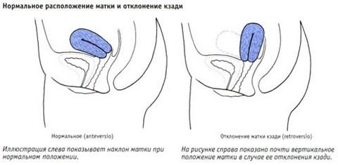 Матка во время оргазма фото 295-458